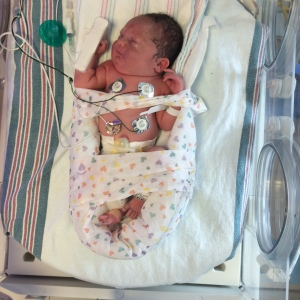 Anna, soon after admittance to NICU.